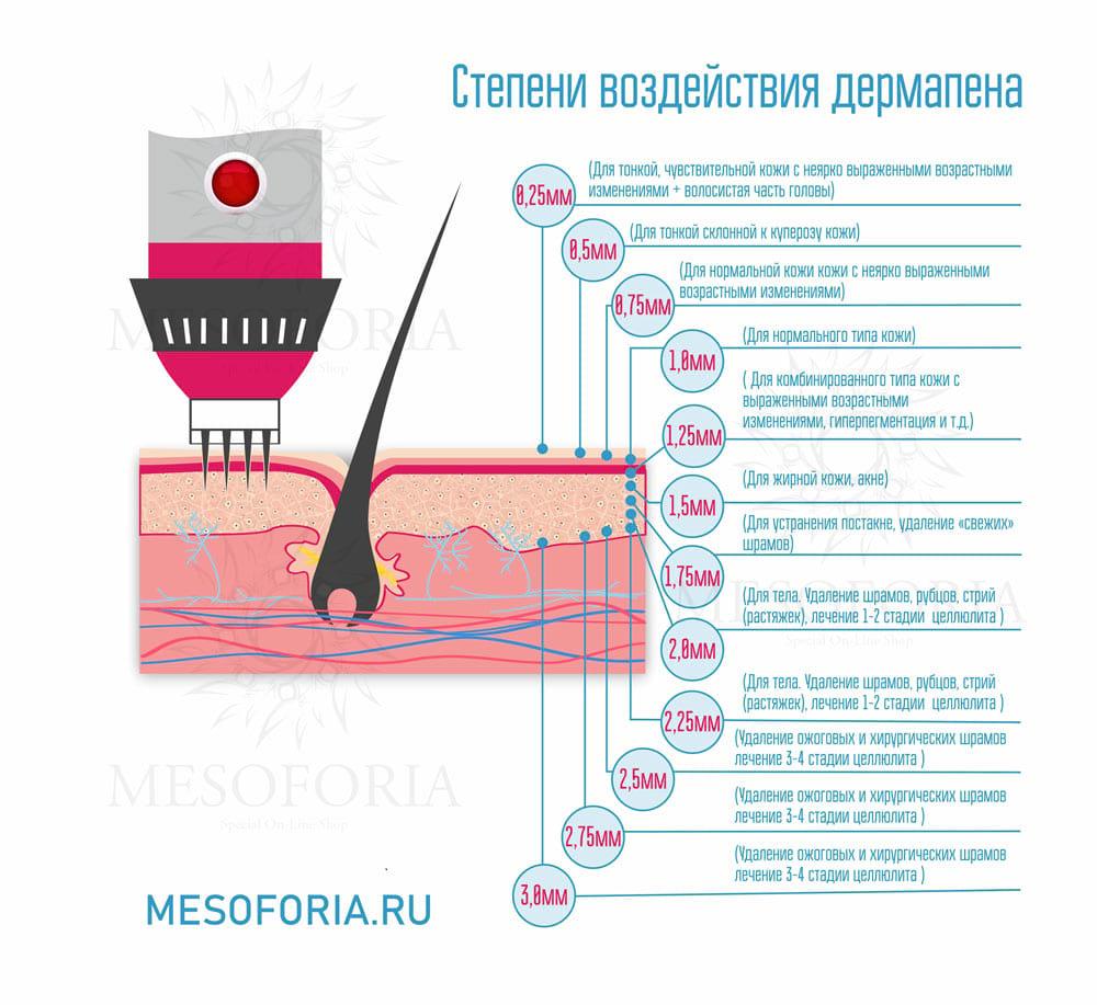 Длины игл аппарата фракционной мезотерапии