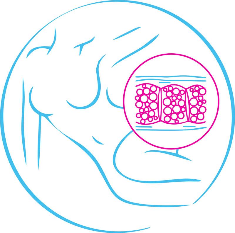 Фракционная мезотерапия для тела